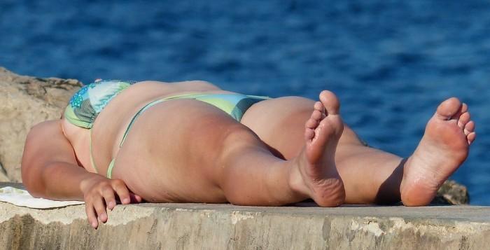 Sunburned in Hawaii