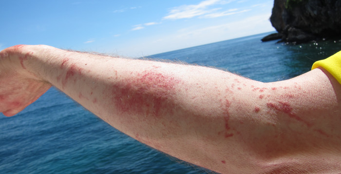 a man's arm with a jellyfish sting