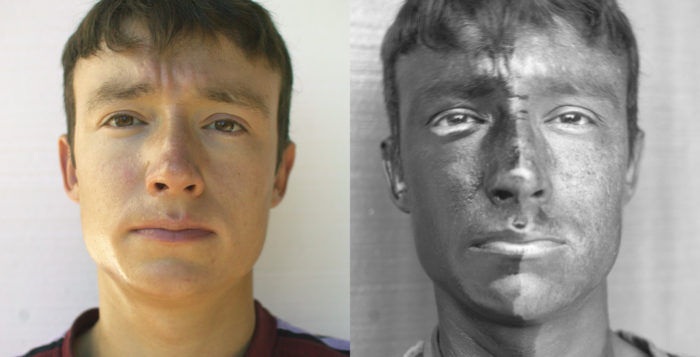 two images of a man with sun damage.